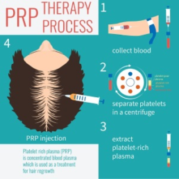 prp therapy process