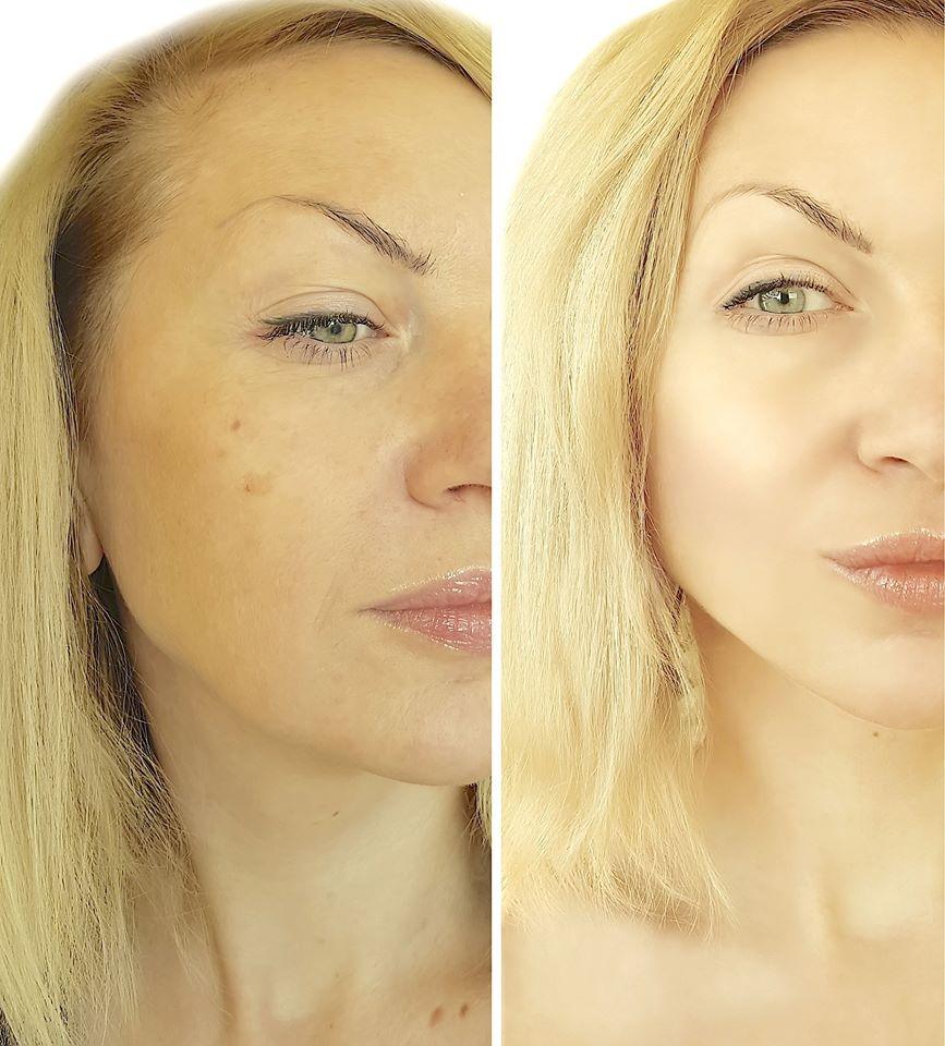 Facial Rejuvenation - try a vampire facelift